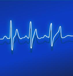 maxpixel.freegreatpicture.com-Ekg-Healthcare-Pulse-Heartbeat-Frequency-Medicine-158177